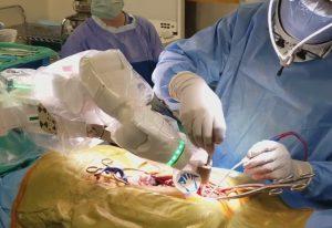 Operație efectuată cu ajutorul robotului Mazor X, la un spital de ortopedie din Statele Unite
