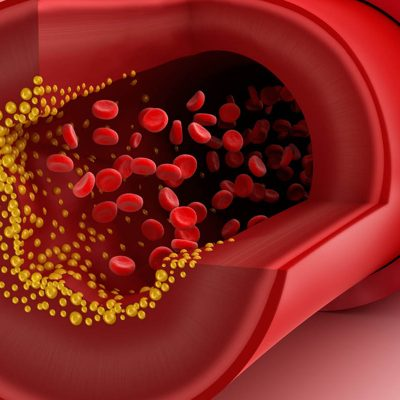 Studiu: Colesterolul crescut la persoanele tinere agravează riscul de boli cardiovasculare